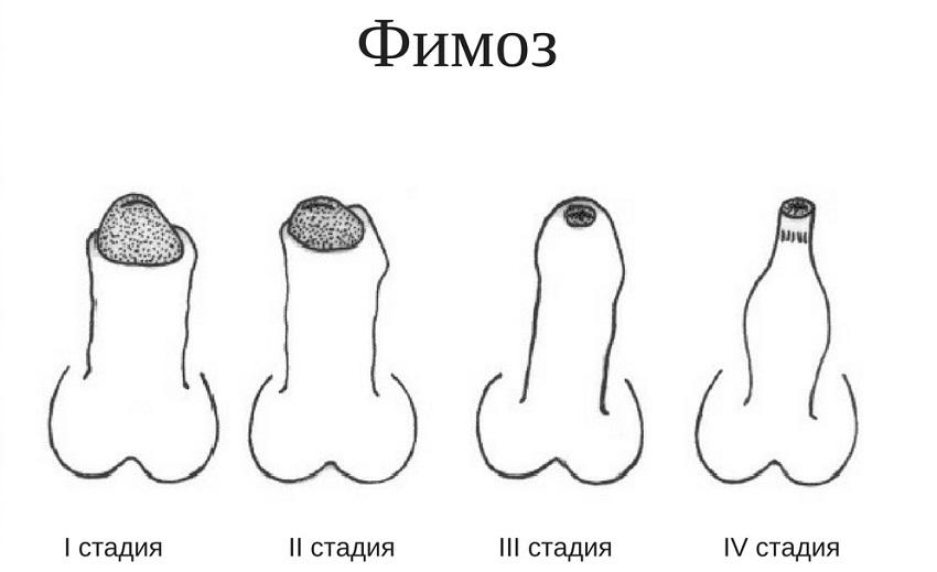 стадии фимоза