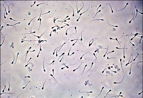 kiska-v-spermogramme